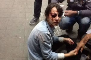 Jornalista alvejada por bala de borracha em São Paulo